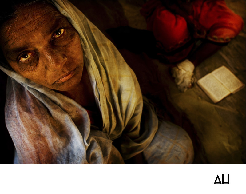 Pictures of Leprosy